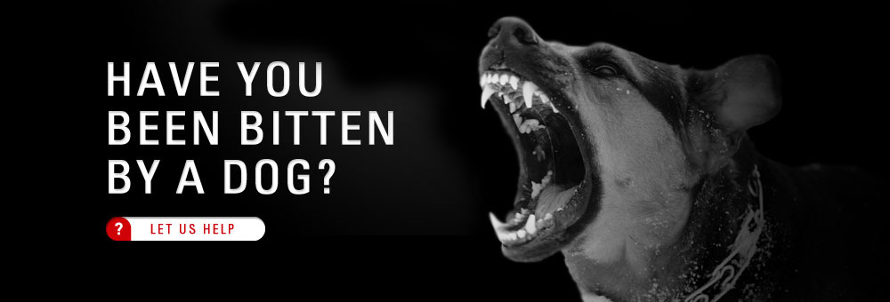 Personal Injury Lawyers in Hamilton, Ontario For Dog Bites and Animal Attacks